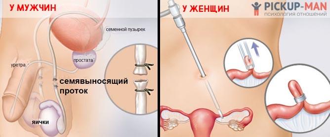 Хирургическая стерилизация